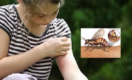 Viêm da tiếp xúc côn trùng và thuốc trị